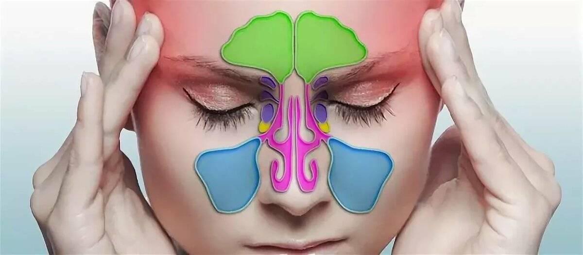 Головная боль при гайморите (синусите): почему, что делать и как лечить
