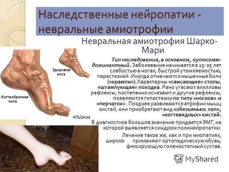 Болезнь шарко – невральная амиотрофия шарко мари тута: симптомы и лечение, код мкб 10