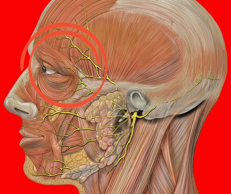 лечение мышечной невралгии