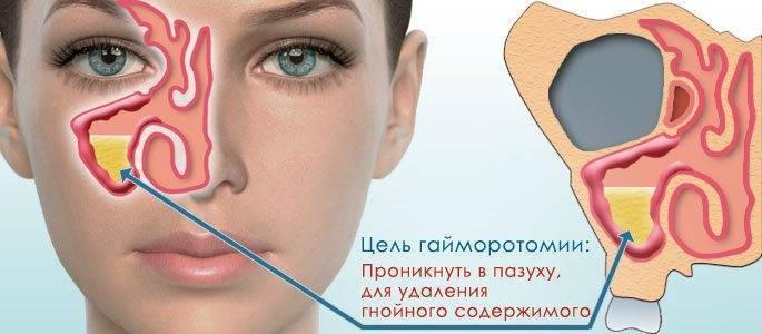 Симптомы и последствия кисты в носу