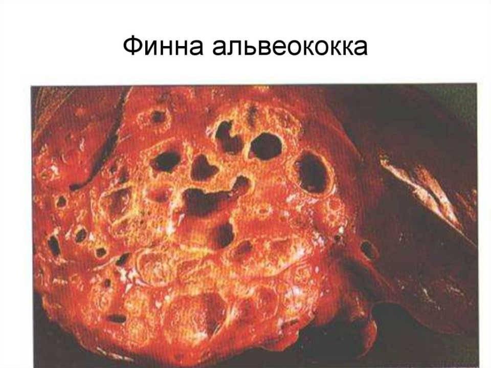 Альвеококкоз — википедия с видео // wiki 2