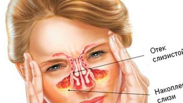 Народные методы лечения синусита