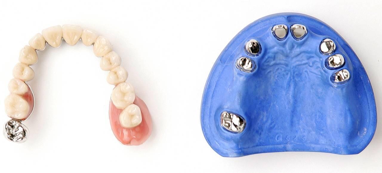 Телескопические протезы зубов