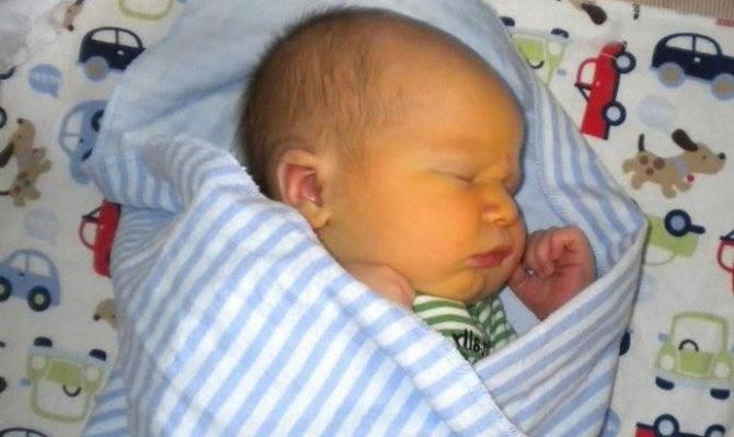 Глюкоза при желтухе новорожденных: особенности применения