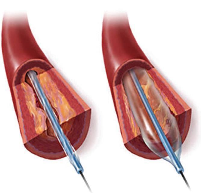 Транслюминальная баллонная ангиопластика коронарных артерий: суть метода, показания и противопоказания