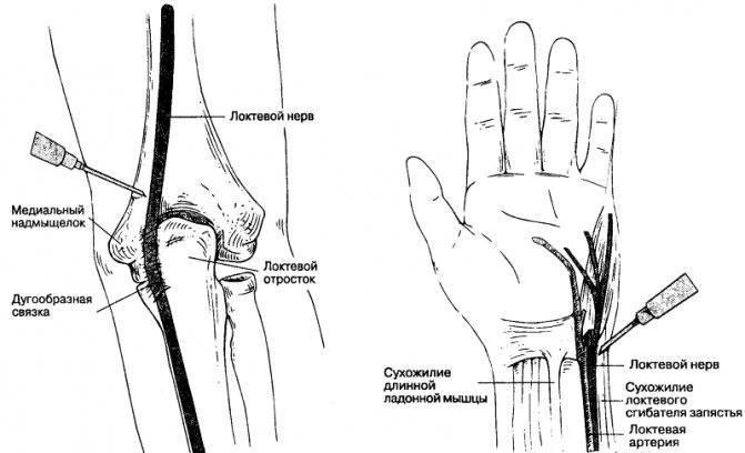 Стоит ли терпеть проявления невропатии локтевого нерва: механизмы и лечение