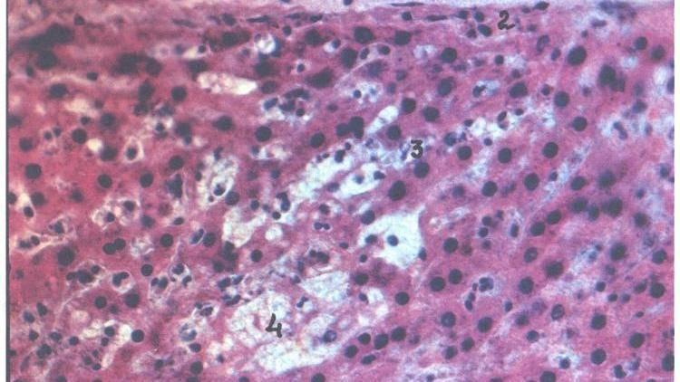 Эхинококкоз печени: симптомы, диагностика и лечение