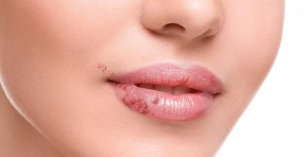 От чего бывает дерматит на губах