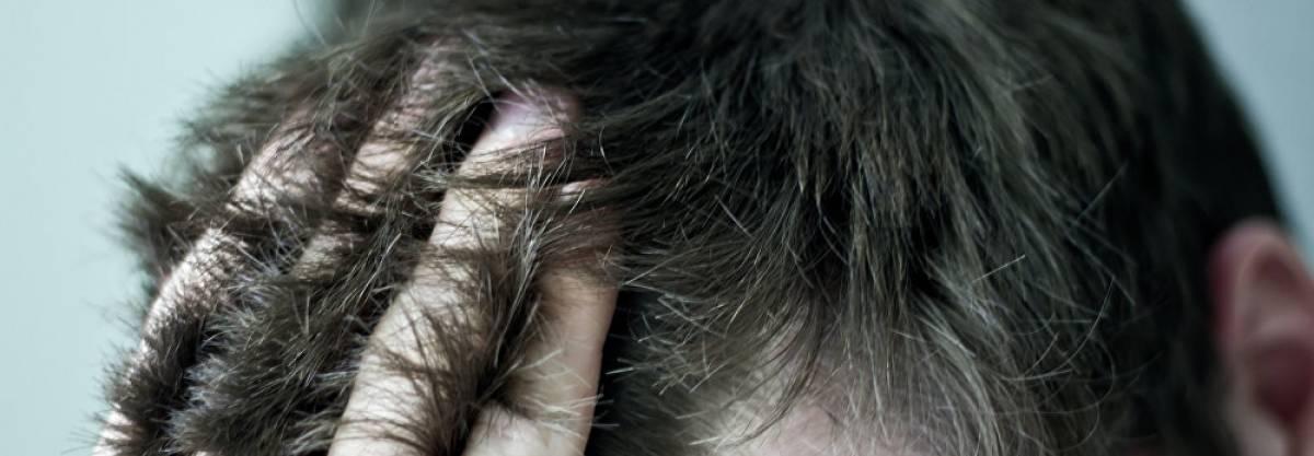демодекоз на голове лечение