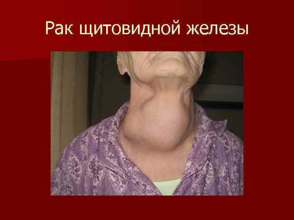рак щитовидной железы прогноз после операции