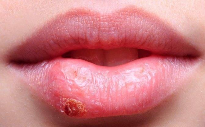 первичный герпес на губах