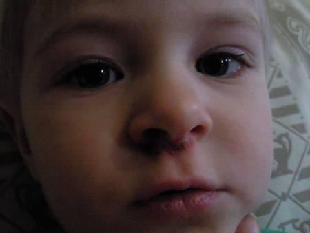 чем лечить герпес в носу у ребенка