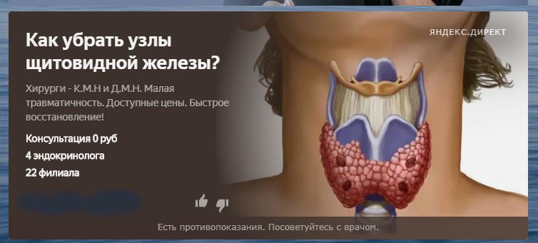 Может ли самостоятельно рассосаться узел в щитовидной железе?