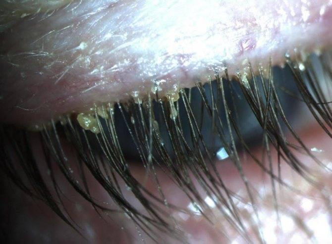 клещ демодекс на ресницах лечение