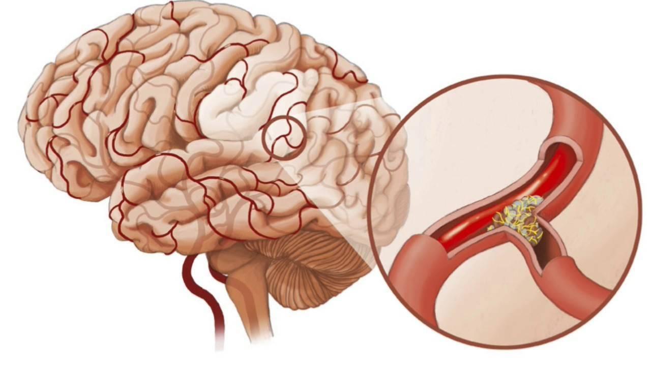 церебральный атеросклероз код по мкб 10