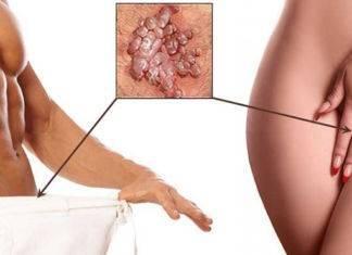 Лечение полового (генитального) герпеса, фото, отзывы