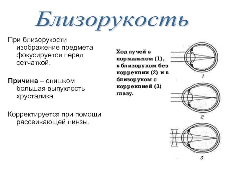 какие линзы носят при близорукости