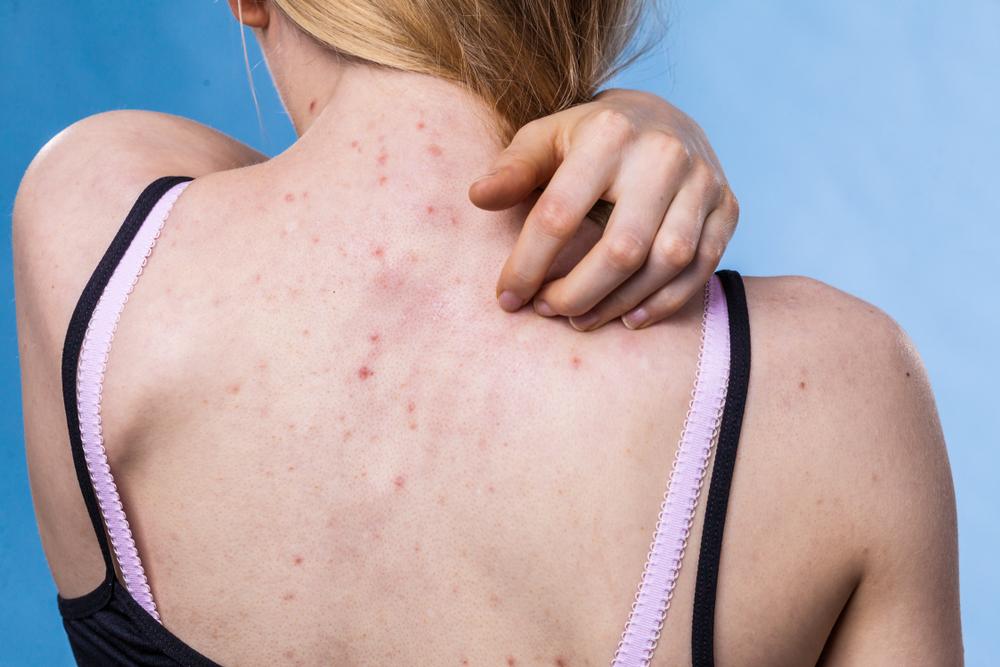 паразиты и аллергия взаимосвязь