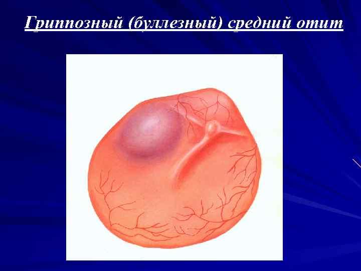 Вирусный отит:  все о беременности и детях