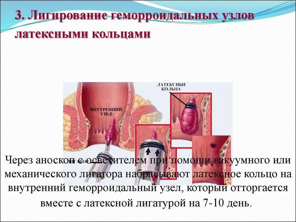 Латексное лигирование внутреннего геморроидального узла