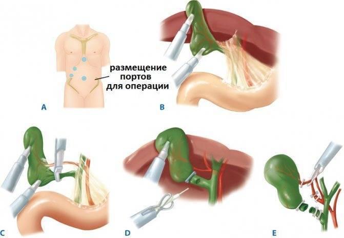 Диета при остром и хроническом холецистите