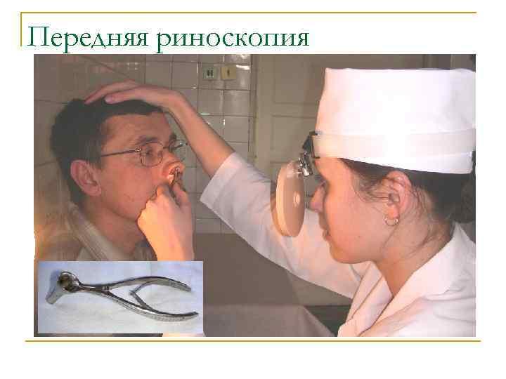 Удалению полипов в носу: способы (лазером, шейвером, петлей), проведение, результат