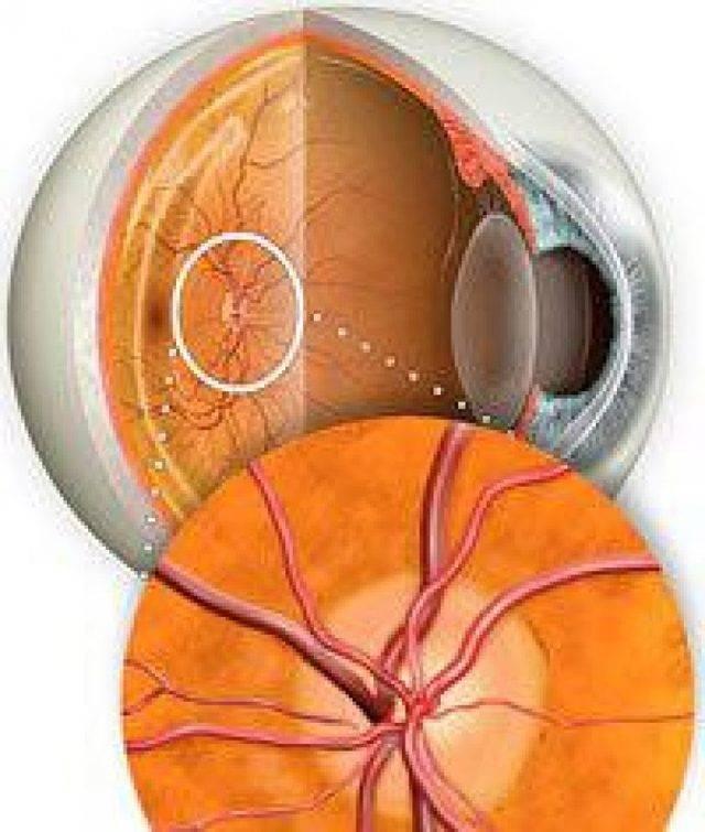 атрофия зрительного нерва симптомы