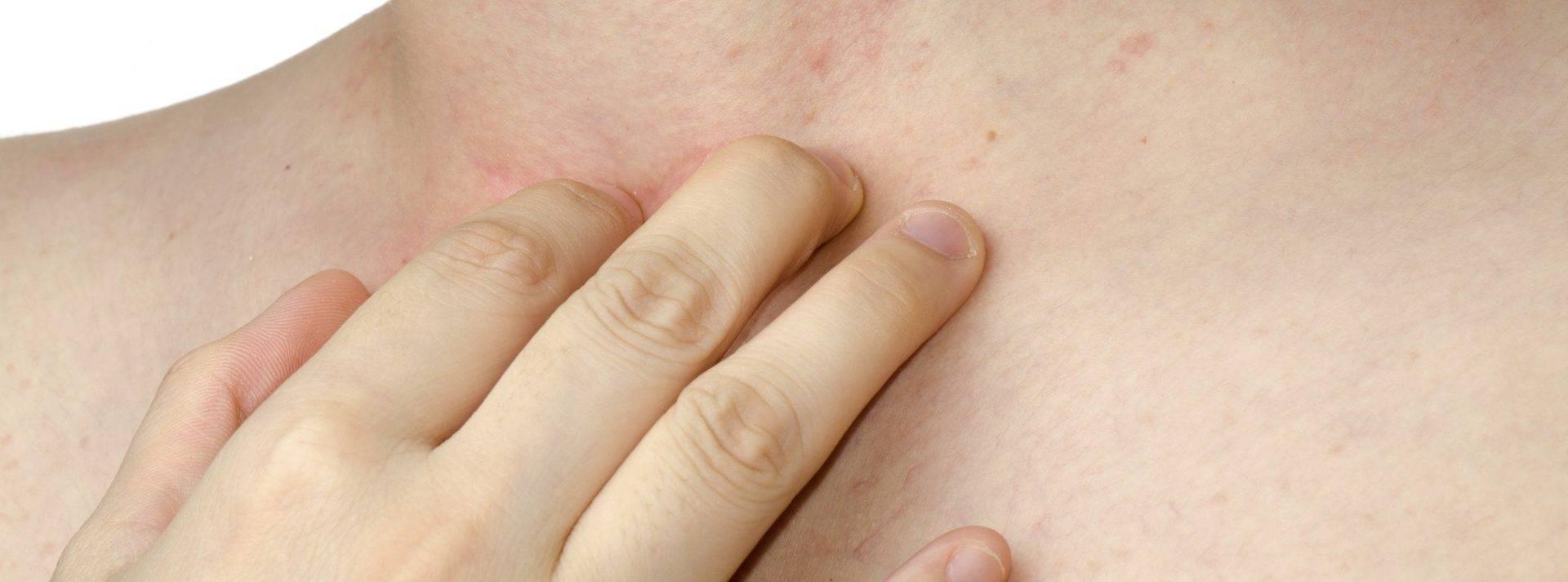 Чесотка— описание, симптомы, профилактика и лечение чесотки