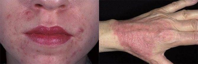 атопический дерматит на теле