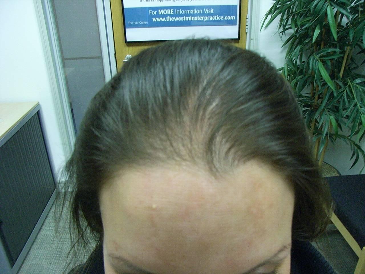 Выпадение волос и щитовидная железа
