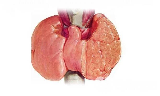 Узловая гиперплазия щитовидной железы лечение народными средств