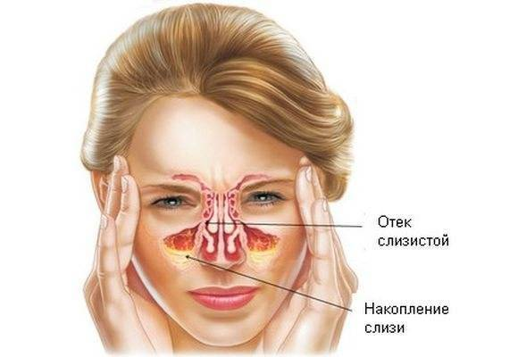 Болит голова при простуде
