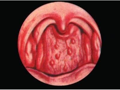 грибок кандида в горле