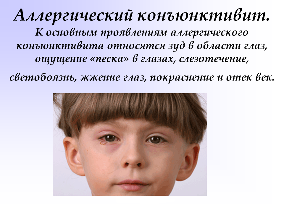 Симптомы и лечение аллергического конъюнктивита у ребенка