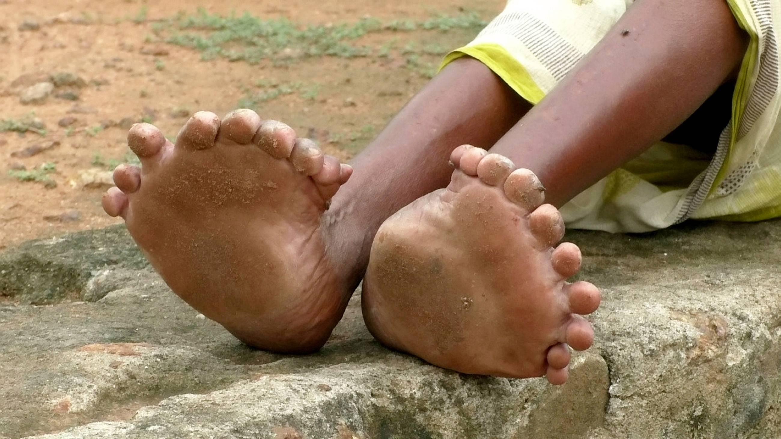 Лимфостаз нижних конечностей – причины, лечение медикаментами и народными средствами