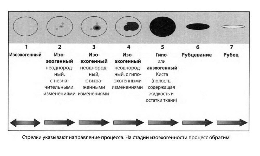 изоэхогенное образование щитовидной железы с гипоэхогенным ободком