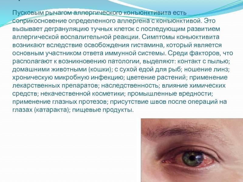 Аллергический конъюнктивит: лечение глазными каплями, симптомы, причины, мкб-10