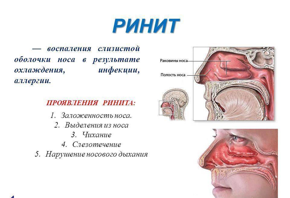 насморк симптомы