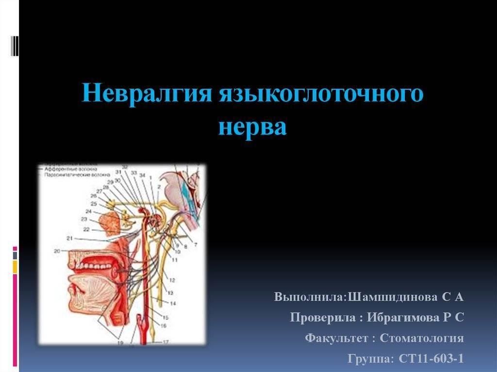 Поражение языкоглоточного нерва: симптомы, причины, профилактика — онлайн-диагностика
