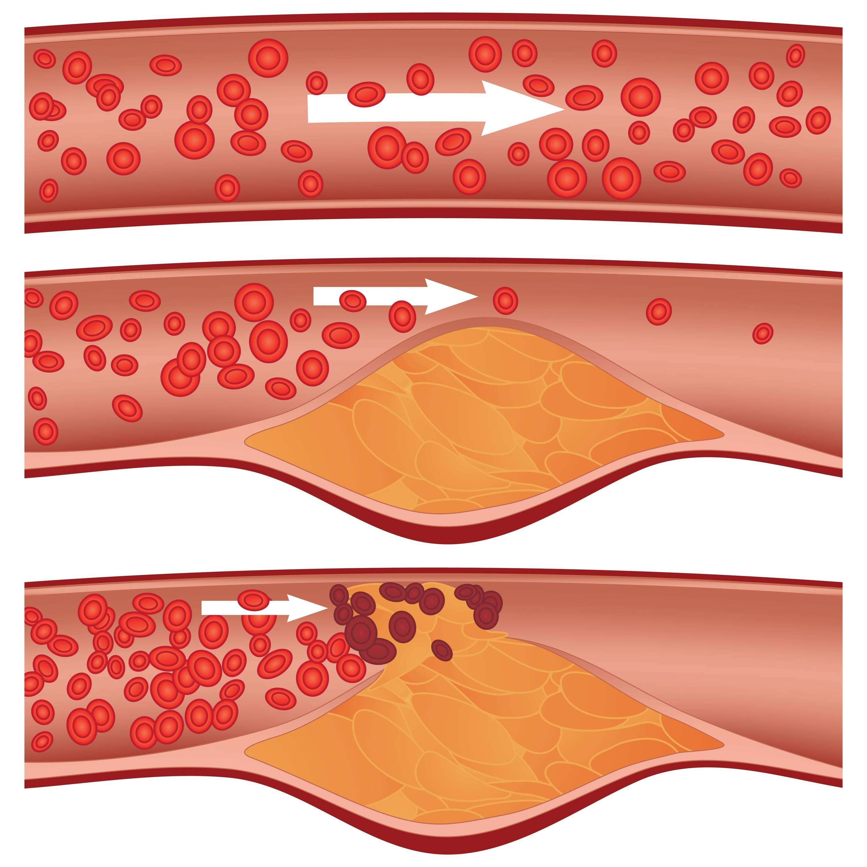 Как убрать холестериновые бляшки в сосудах?