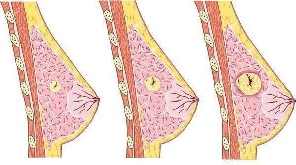 Молочная железа: заболевания. фиброаденома молочной железы. рак молочной железы