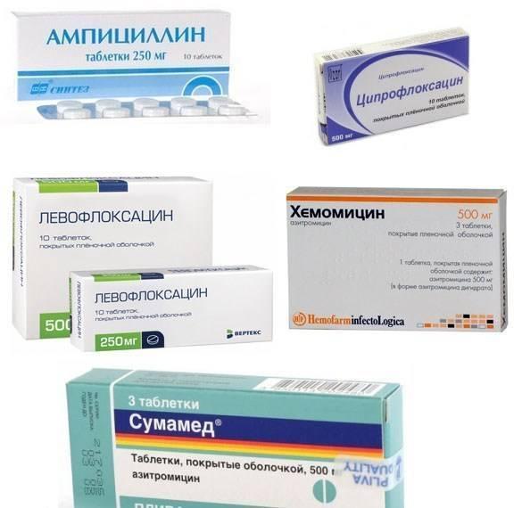 антибиотики при ларингите у взрослых быстрое лечение