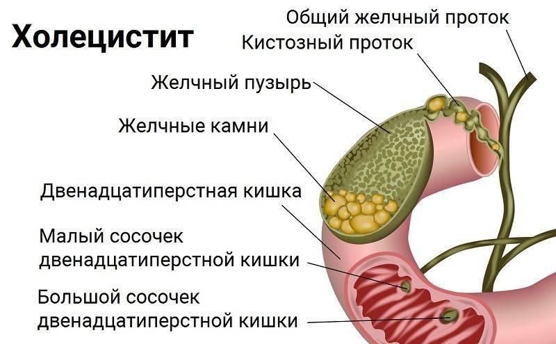 Отключенный желчный пузырь: что делать, симптомы и лечение