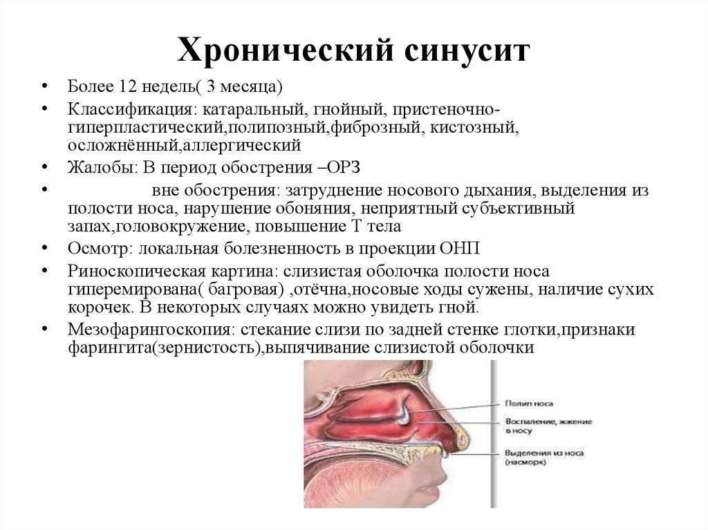 Самые эффективные народные средства лечения гайморита