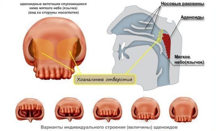 от чего появляются аденоиды
