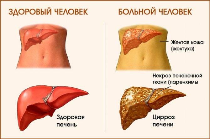 цирроз печени симптомы у мужчин