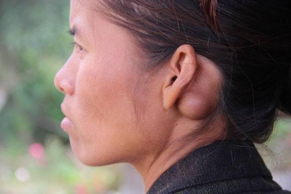 киста за ухом