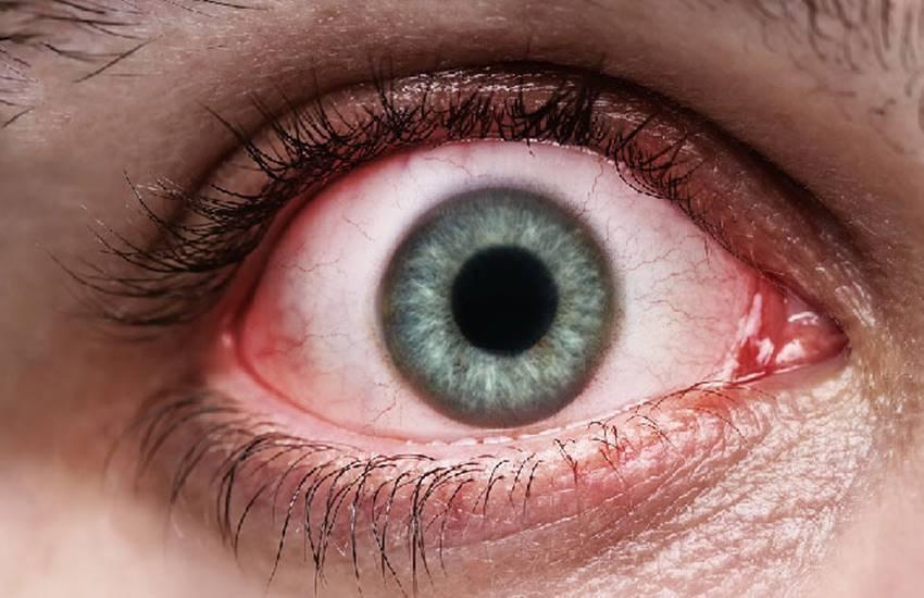 Глисты и черви в глазах: виды, симптомы и лечение | все о паразитах