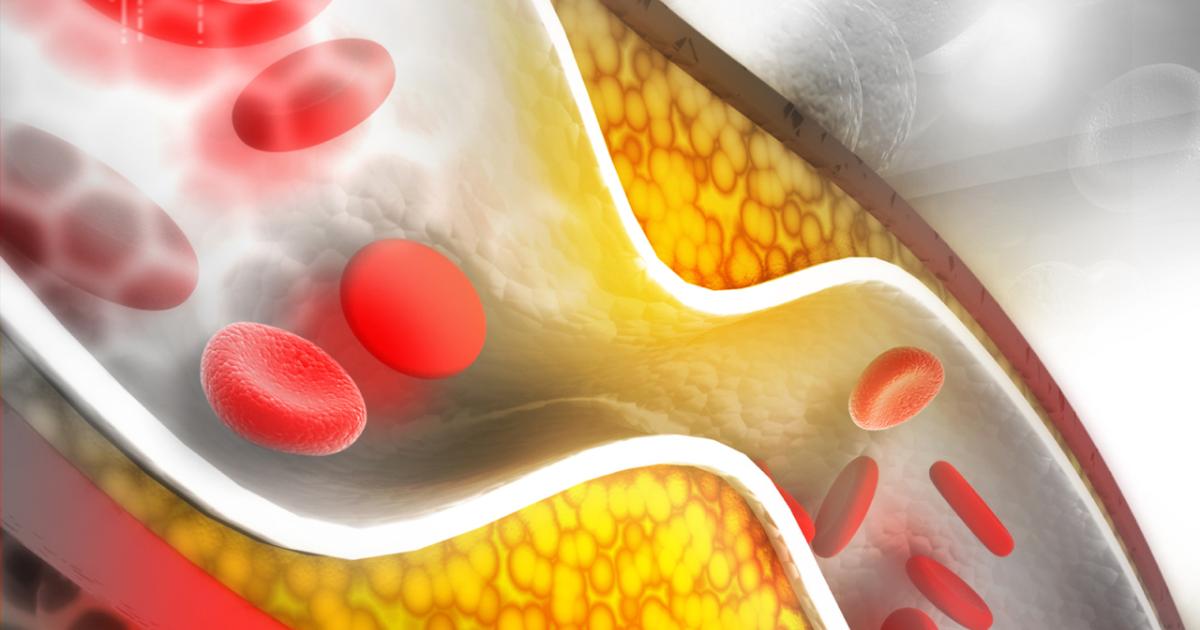 Что такое холестерин? уровень холестерина в крови: норма. диета при повышенном холестерине
