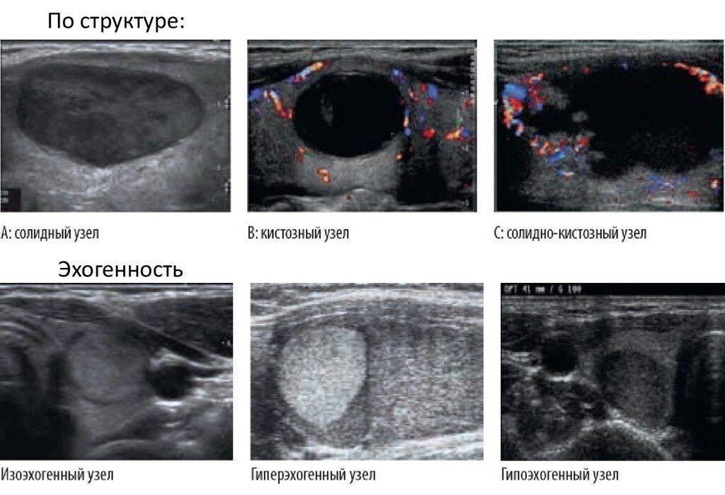 кальцинированный узел щитовидной железы что это